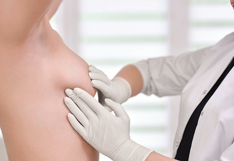 Lump in the breast may not be cancer