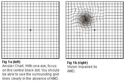 Amsler Chart - Age-related macular degeneration - SNEC