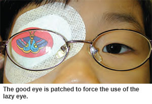 Treatment for amblyopia at Singapore National Eye Centre.