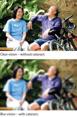 Blur vision with cataract - Singapore National Eye Centre