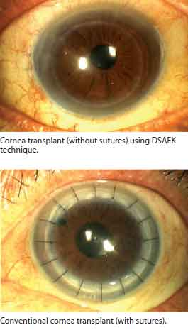 Corneal transplant at SIngapore National Eye Centre.