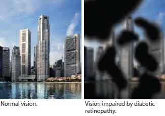 Diabetic retinopathy vision - Singapore National Eye Centre