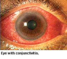 Eye with conjunctivitis - Singapore National Eye Centre
