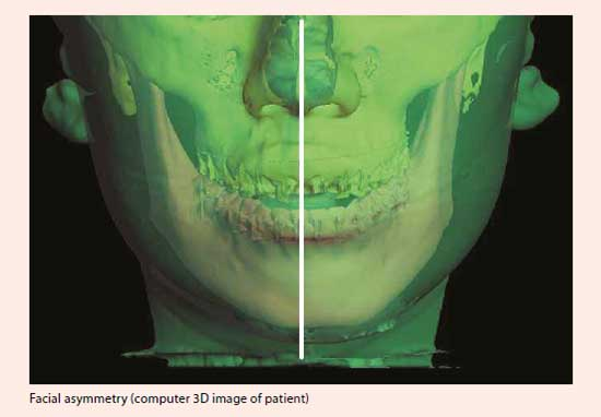 Surgical Treatment of Jaw Malalignment at National Dental Centre Singapore