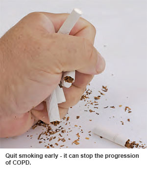 Quit smoking to stop the progression of COPD.