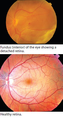 Fundus (interior) of the eye showing a detached retina - SNEC
