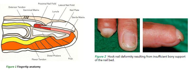 Nail Matrix Anatomy Function Injuries And Disorders Manual Guide