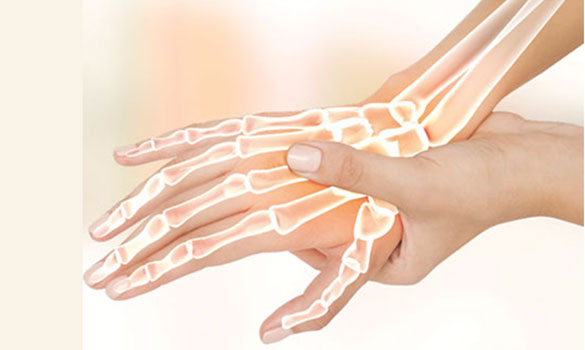 Carpal Tunnel Syndrome Singhealth