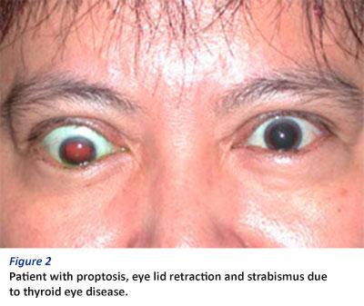 Thyroid Eye Disease A Brief Overview Singhealth