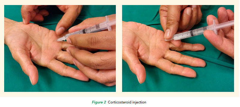 Trigger fingers corticosteroid injection at SGH
