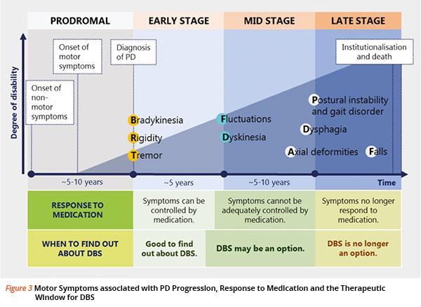 Parkinsons Disease Progression >> Deep Brain Stimulation For Parkinson S Disease Singhealth