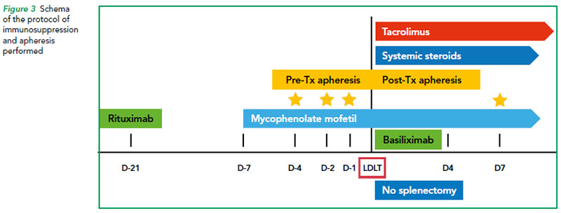 Schema of the protocol of immunosuppression and apheresis performed - SGH
