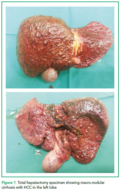 Total hepatectomy specimen showing macro-nodular cirrhosis with HCC in the left lobe - SGH