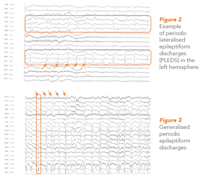 Periodic lateralised and generalized periodic epileptiform discharges. NNI