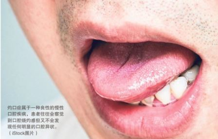 Burning Mouth Syndrome more common among females