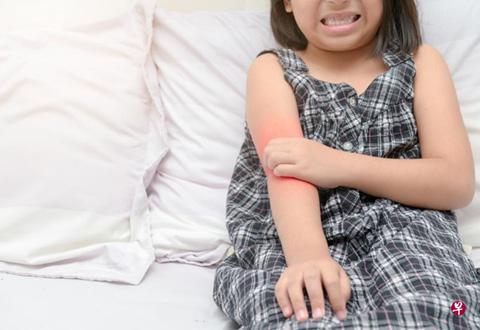 极端气候变化 会诱发儿童湿疹
