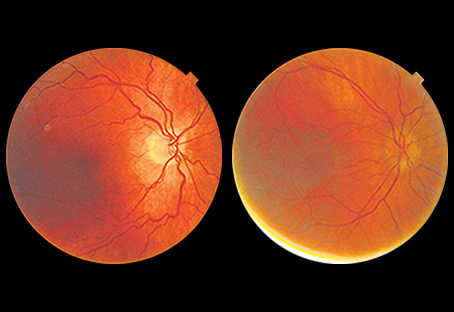 Using AI to interpret eye images for major health risks