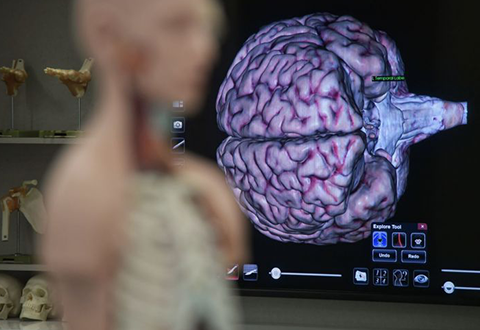 First brain bank in Singapore launched to improve research on Asian brain disorders, donors wanted