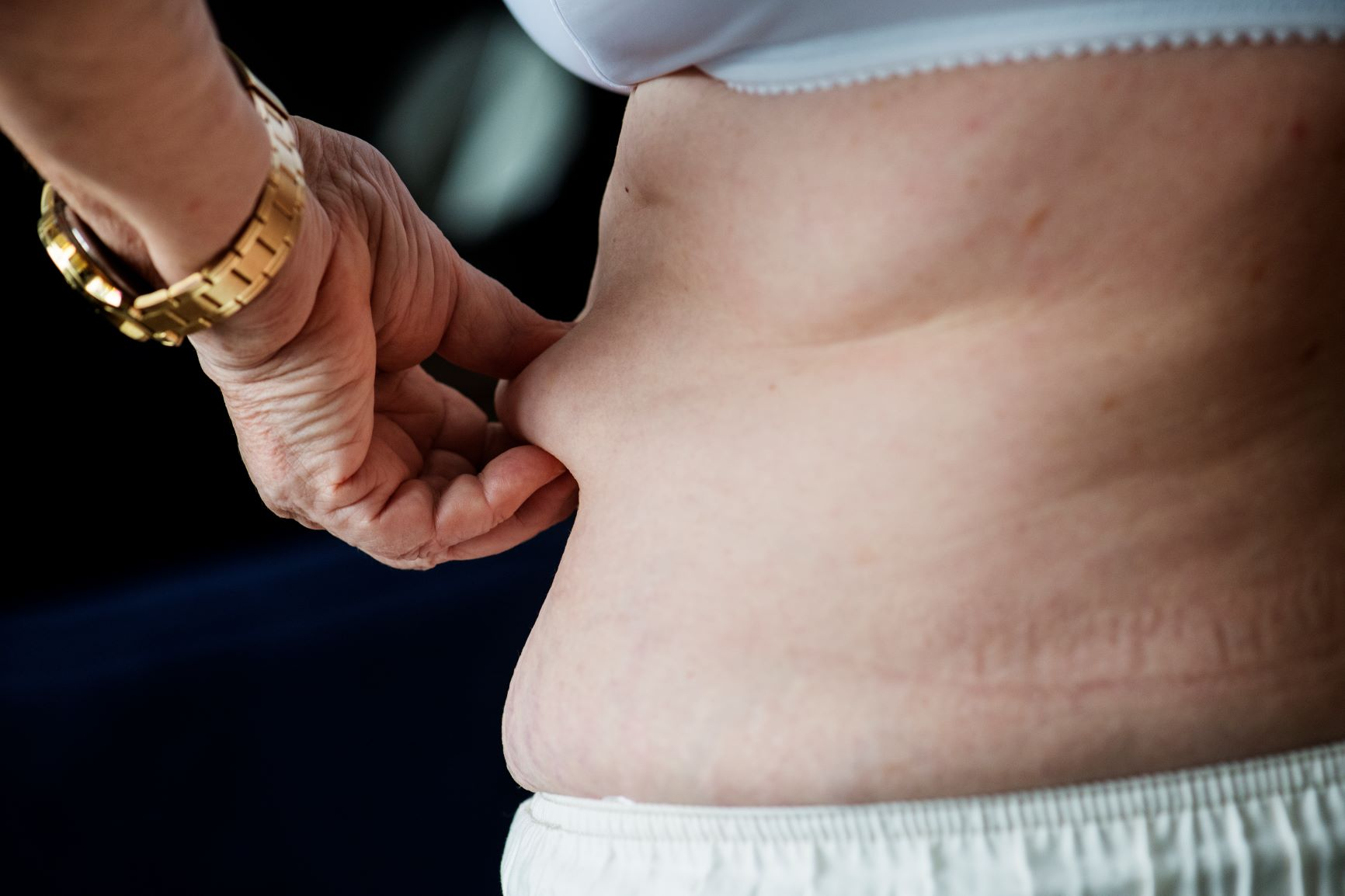 Older adults with obesity may have fewer years of healthy life