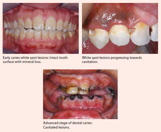 Adult caries treatment at National Dental Centre Singapore