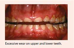 Excessive wear of the hard outer layers (enamel and dentine) - National Dental Centre Singapore