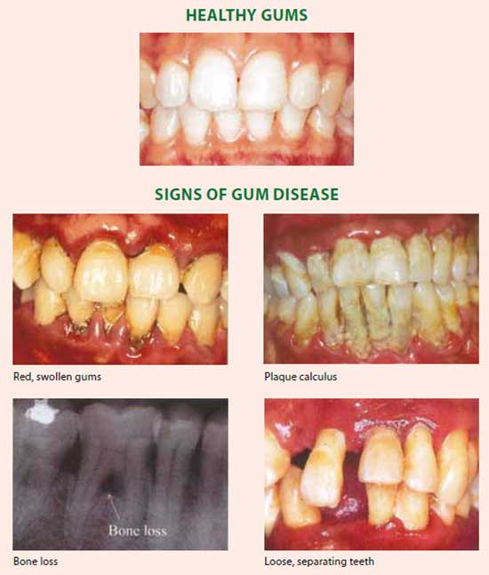 Signs of gum disease - National Dental Centre Singapore