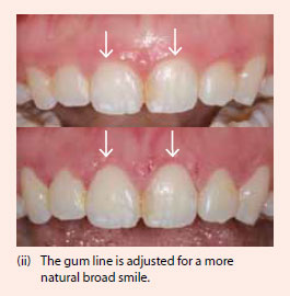 Gum surgery to adjust gum line for more natural broad smile - NDCS