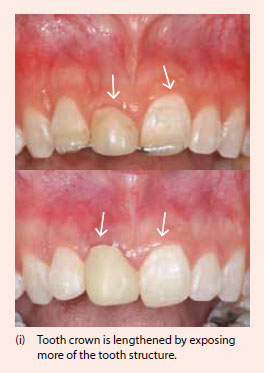 Gum surgery to lengthen tooth crown - National Dental Centre Singapore