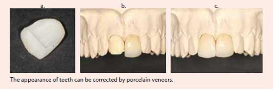 The appearance of teeth can be corrected by porcelain veneers - NDCS
