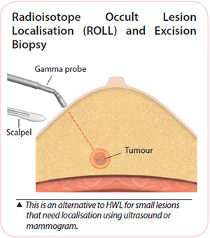 Breast cancer diagnosis - Radioisotope occult lesion localisation and Excision biopsy
