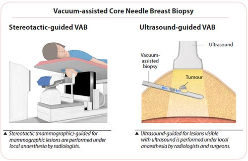 Breast cancer diagnosis - Vacuum-assisted core needle breast biopsy