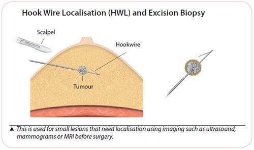 Breast cancer diagnosis - Hook wire localisation biopsy