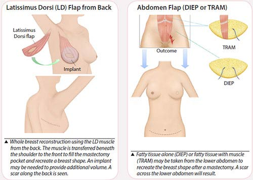 Breast cancer treatment - Flap reconstruction
