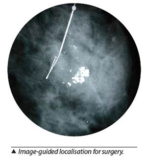 Breast cancer treatment - Image-guided localisation for surgery