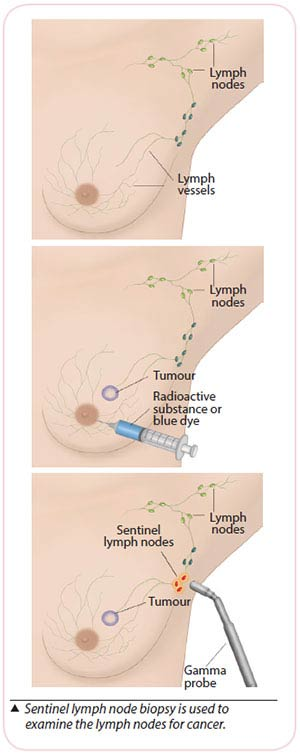Breast cancer treatment - Sentinel lymph node biopsy