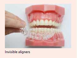 Invisible braces treatment for malocclusion available at National Dental Centre Singapore.