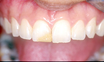 Crowns are used to correct minor problems in natural teeth by the National Dental Centre Singapore