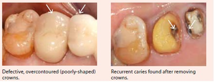 defective-fillings-by-national-dental-centre-singapore