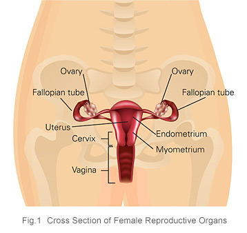 Ovarian cancer cross section of female reproductive organs KKH