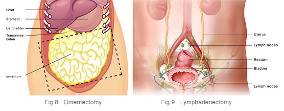 Ovarian Cancer What Is It Symptoms Risk Factors Diagnosis And