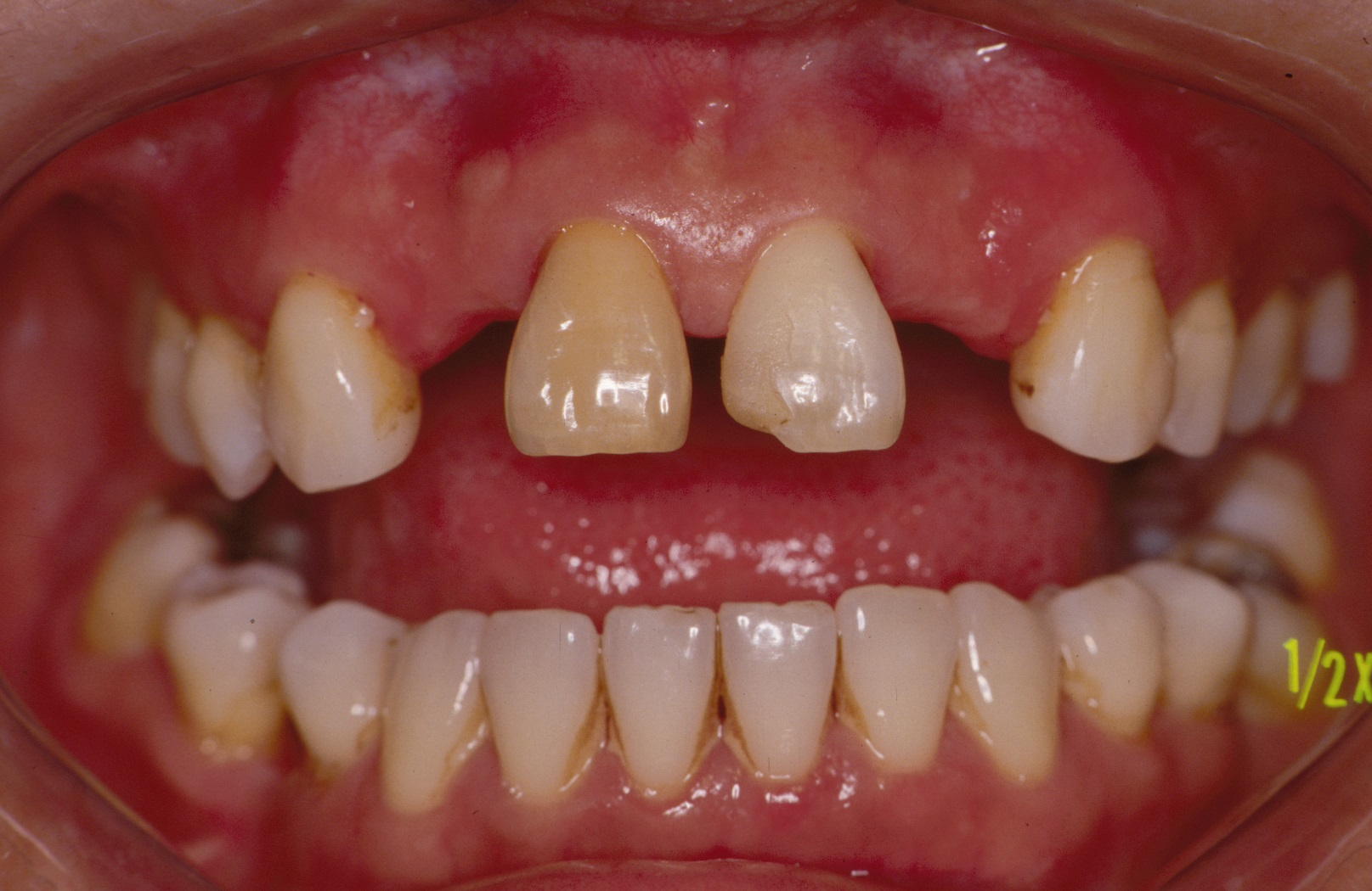 Patient needing resin-bonded bridges, according to the National Dental Centre Singapore
