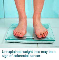 Colorectal Cancer Unexplained Weight Loss Singapore General Hospital