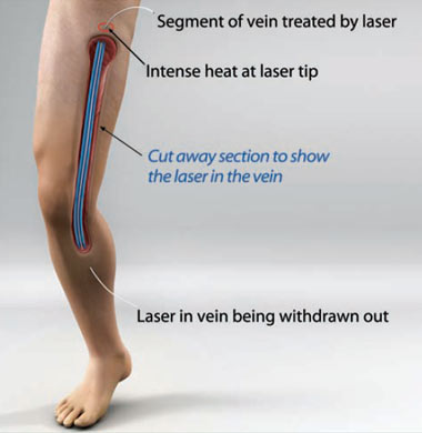 Endovascular Laser Therapy Singapore General Hospital