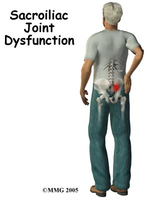 Sacroiliac Joint Dysfunction Singapore General Hospital