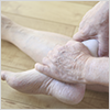 New-Surgery-for-Severe-Ankle-Arthritis