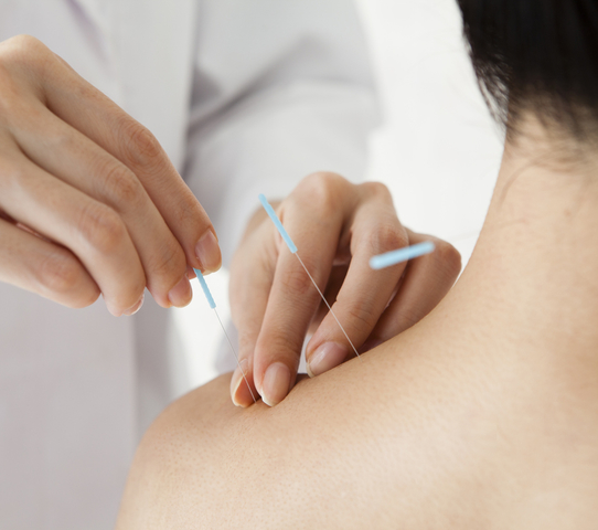 How Acupuncture Can Be an Effective Treatment for Chronic Pain