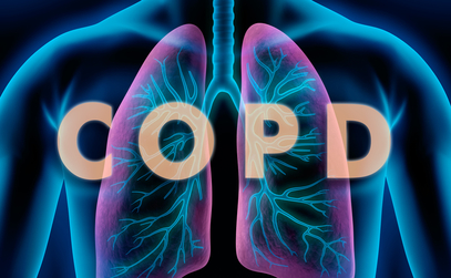 Chronic Obstructive Pulmonary Disease: How to Diagnose and Select Initial Treatment