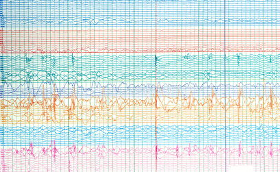 New EEG Service Captures Brain Activity and Seizures On the Go