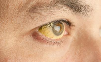 Obstructive Jaundice: Symptoms and Treatments