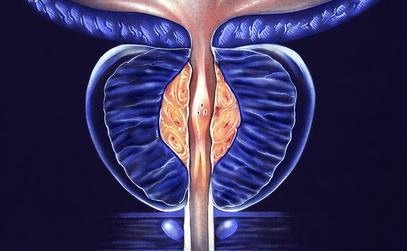 Rezum: A Minimally Invasive Option for Benign Prostatic Hyperplasia
